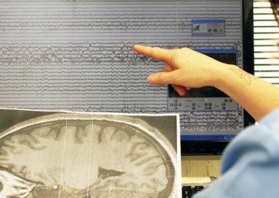 bambin_gesu_diagnosi_cura_epilessie